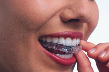 Dentista Invisalign Magenta studio dentistico Esseti 88